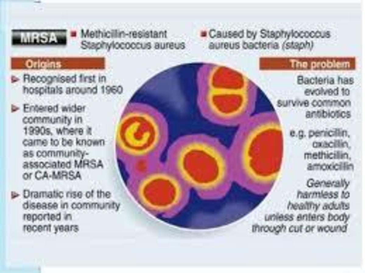 Sports Medicine Primer Methicillin Resistant S Aureus